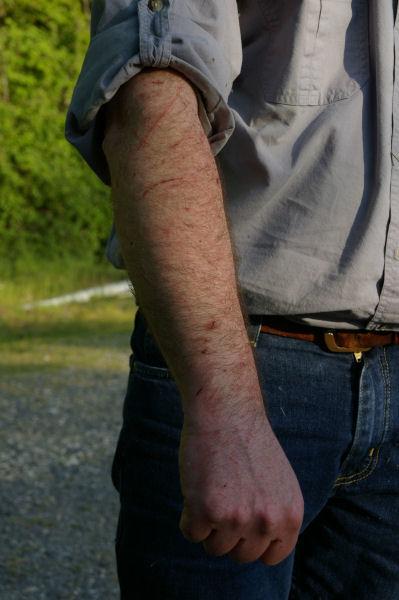 Mes bras après un féroce combat avec des ronces...